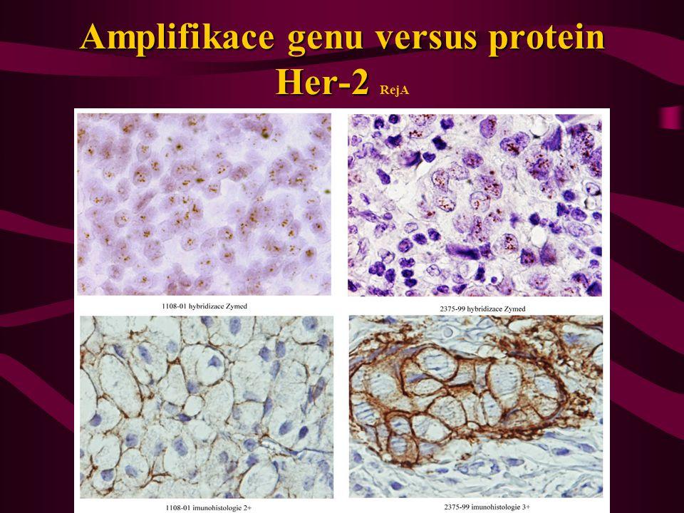 Amplifikace genu versus protein Her-2 RejA