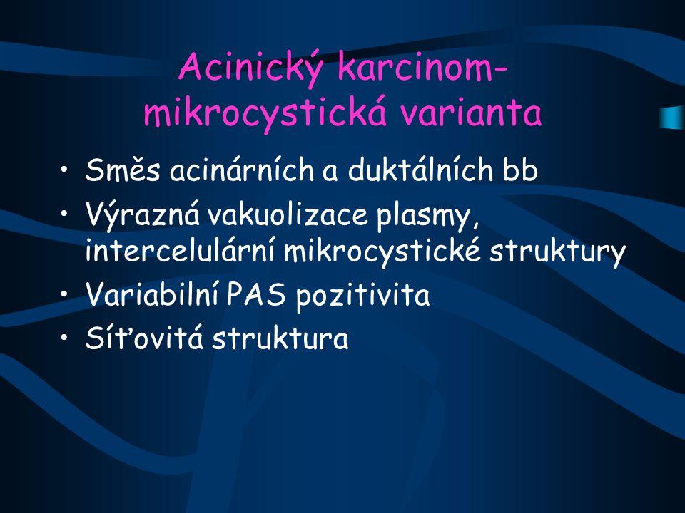 Acinický karcinom-mikrocystická varianta