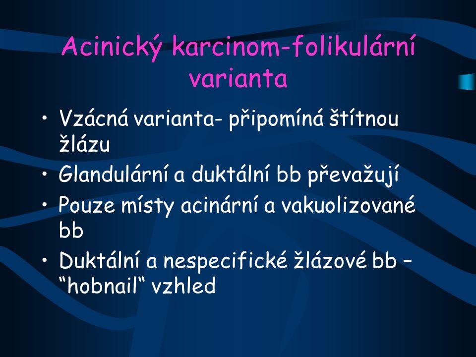 Acinický karcinom-folikulární varianta