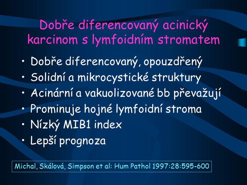 Dobře diferencovaný acinický karcinom s lymfoidním stromatem