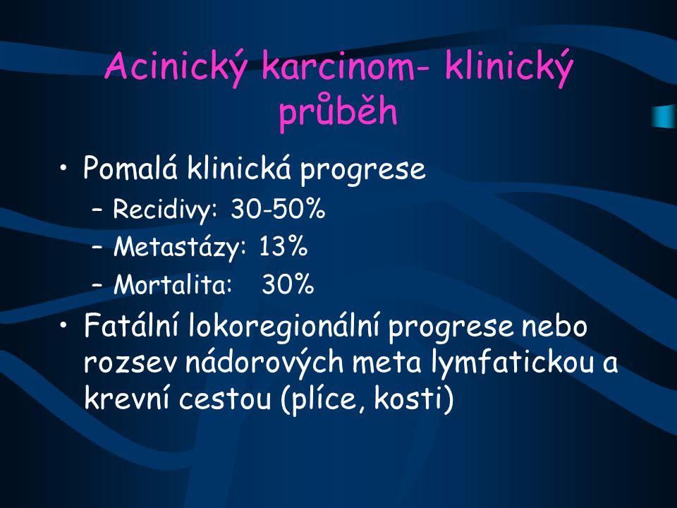 Acinický karcinom- klinický průběh