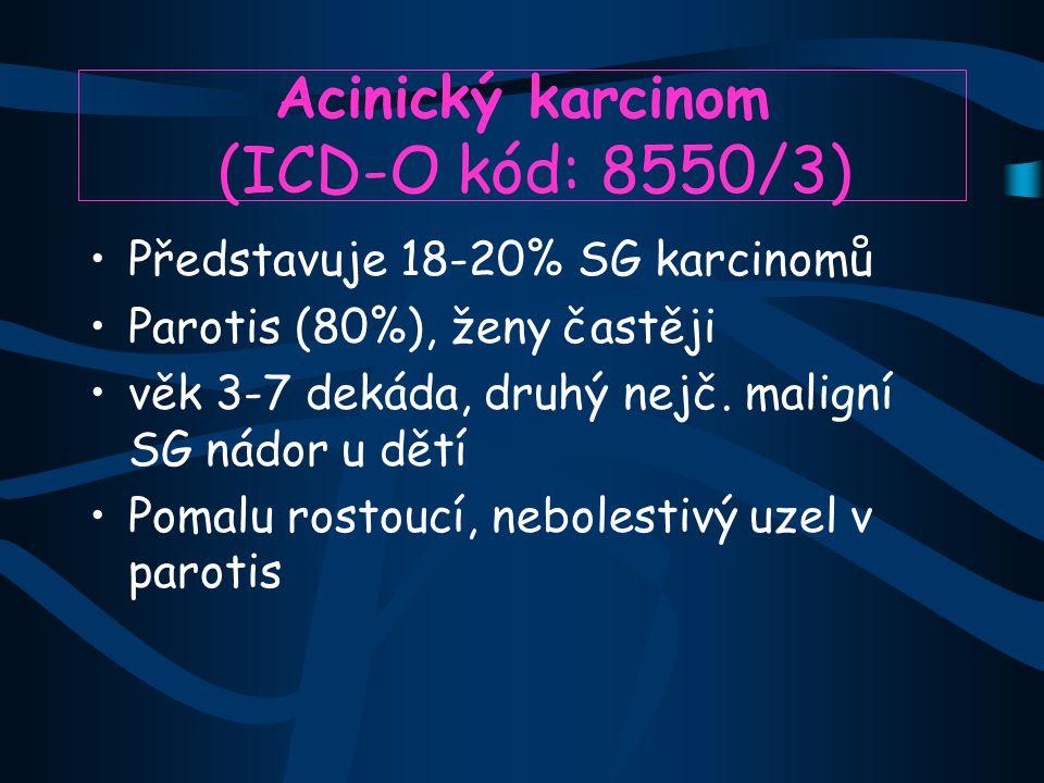 Acinický karcinom (ICD-O kód: 8550/3)