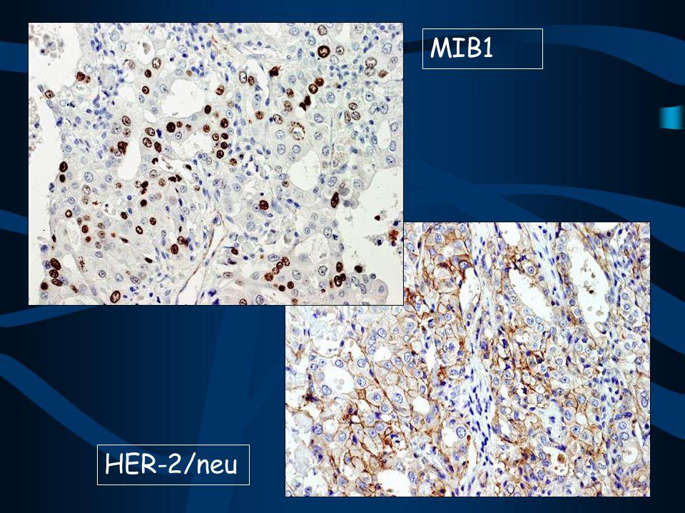 MIB1 MIB1 HER-2/neu