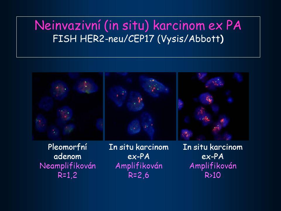 Neinvazivní (in situ) karcinom ex PA