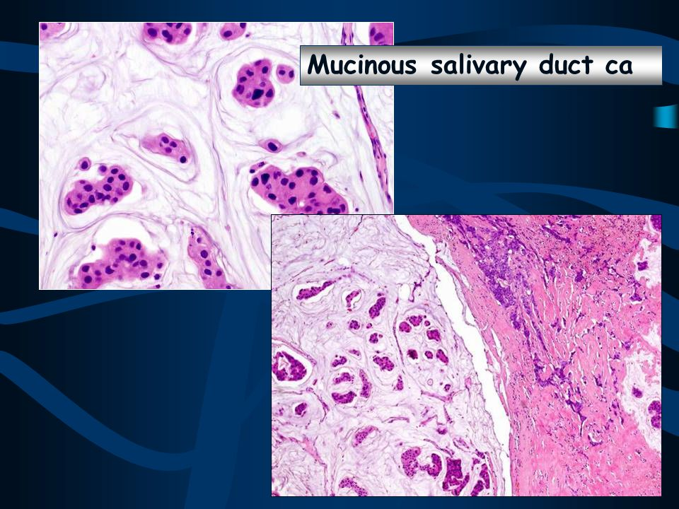 Mucinous salivary duct ca