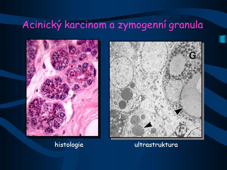 Acinický karcinom a zymogenní granula