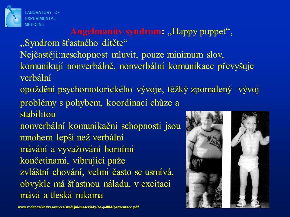 """Angelmanův syndrom: """"Happy puppet , """"Syndrom šťastného dítěte"""