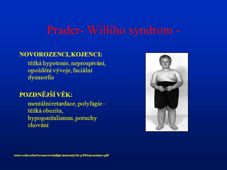 Prader- Williho syndrom -