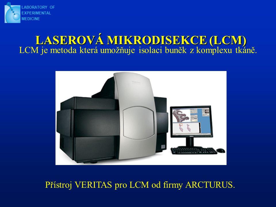LASEROVÁ MIKRODISEKCE (LCM)