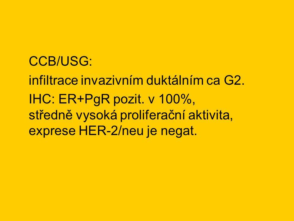 CCB/USG: infiltrace invazivním duktálním ca G2. IHC: ER+PgR pozit.