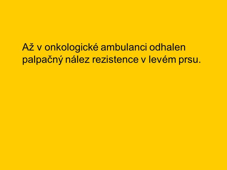 Až v onkologické ambulanci odhalen palpačný nález rezistence v levém prsu.