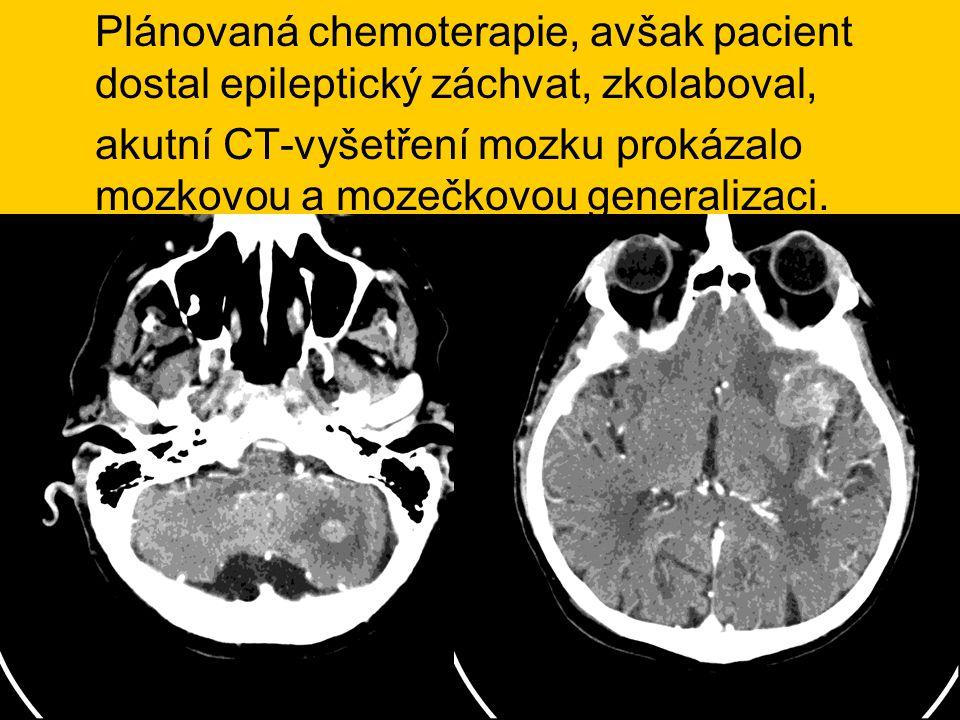 Plánovaná chemoterapie, avšak pacient dostal epileptický záchvat, zkolaboval,