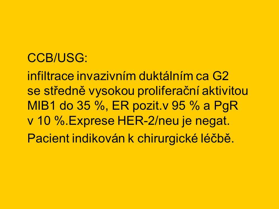 CCB/USG: