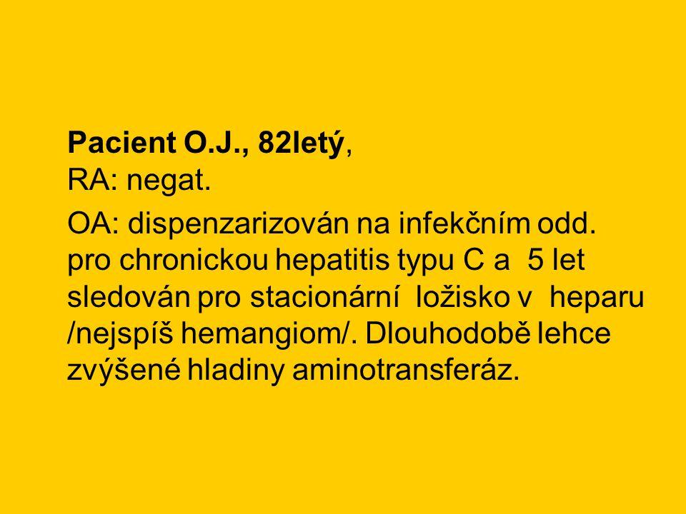 Pacient O.J., 82letý, RA: negat.