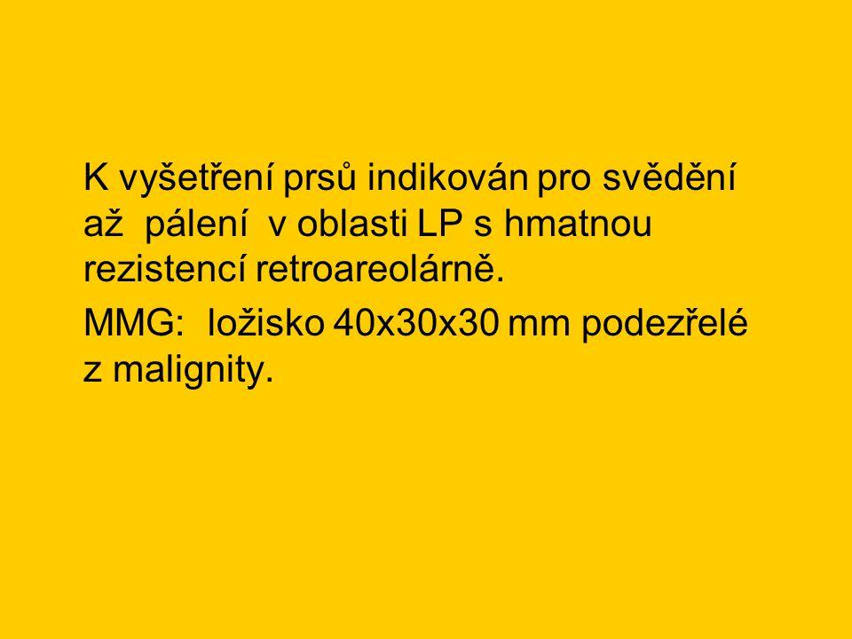 K vyšetření prsů indikován pro svědění až pálení v oblasti LP s hmatnou rezistencí retroareolárně.