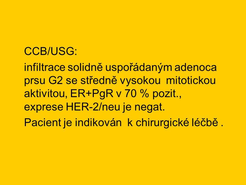 CCB/USG: infiltrace solidně uspořádaným adenoca prsu G2 se středně vysokou mitotickou aktivitou, ER+PgR v 70 % pozit., exprese HER-2/neu je negat.