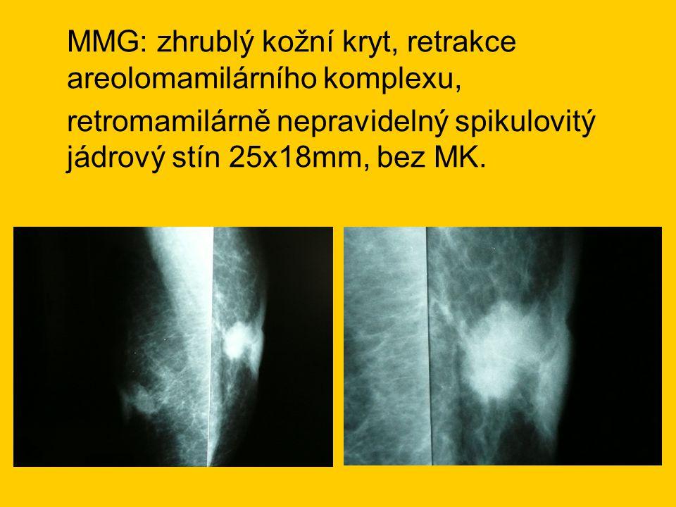 MMG: zhrublý kožní kryt, retrakce areolomamilárního komplexu,
