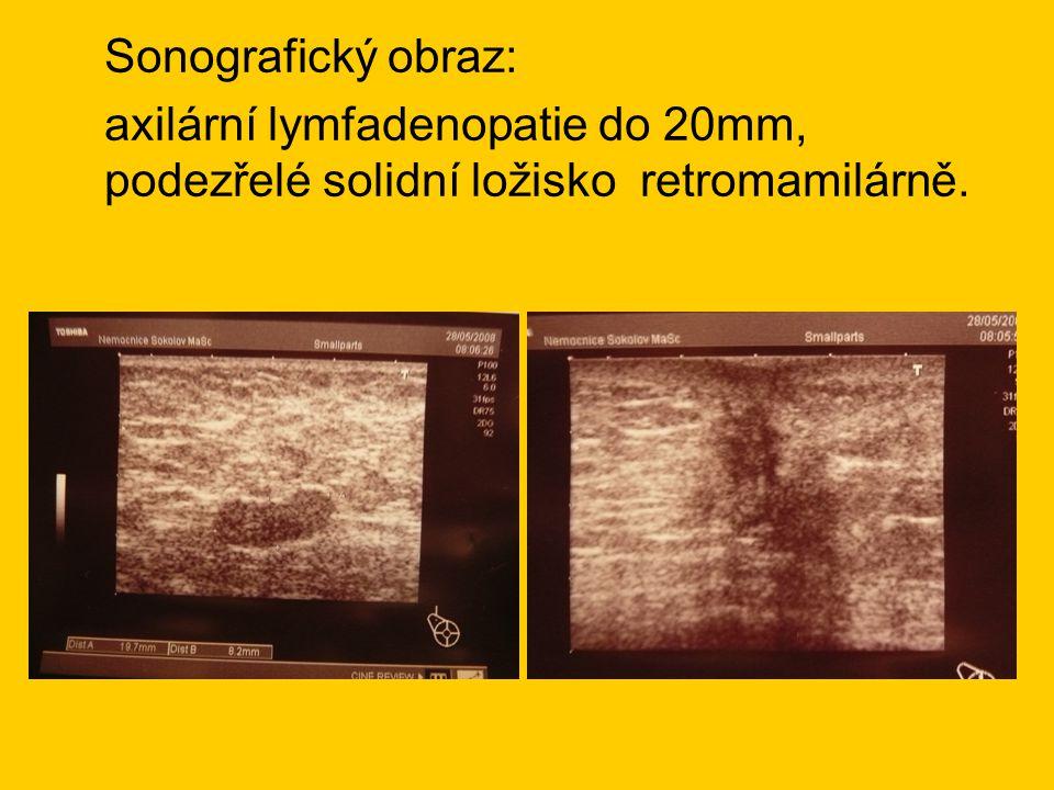 Sonografický obraz: axilární lymfadenopatie do 20mm, podezřelé solidní ložisko retromamilárně.