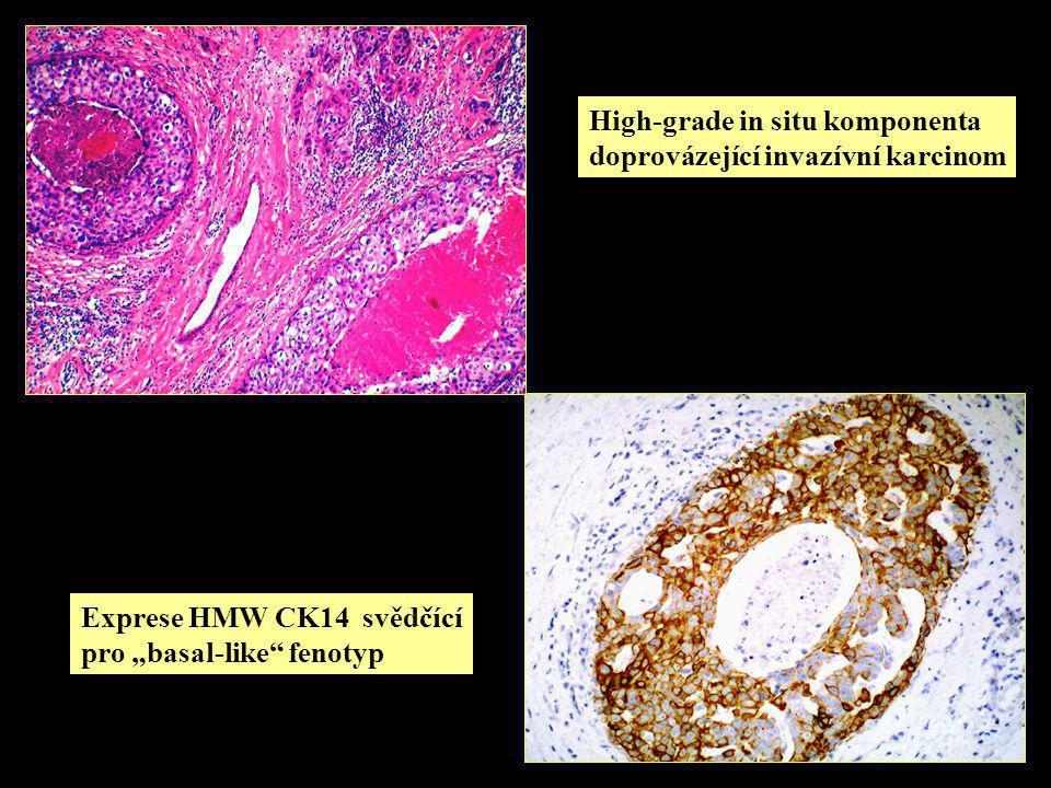 High-grade in situ komponenta doprovázející invazívní karcinom