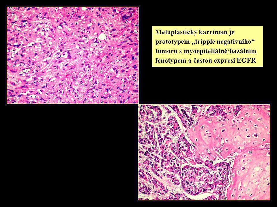 """Metaplastický karcinom je prototypem """"tripple negativního tumoru s myoepiteliálně/bazálním fenotypem a častou expresí EGFR"""