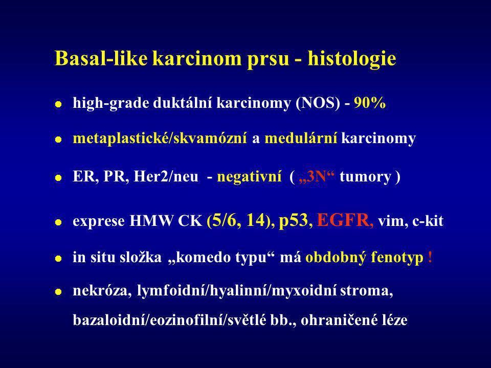 Basal-like karcinom prsu - histologie