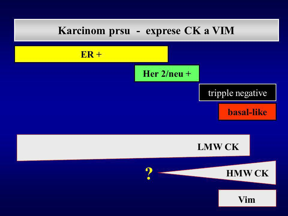 Karcinom prsu - exprese CK a VIM