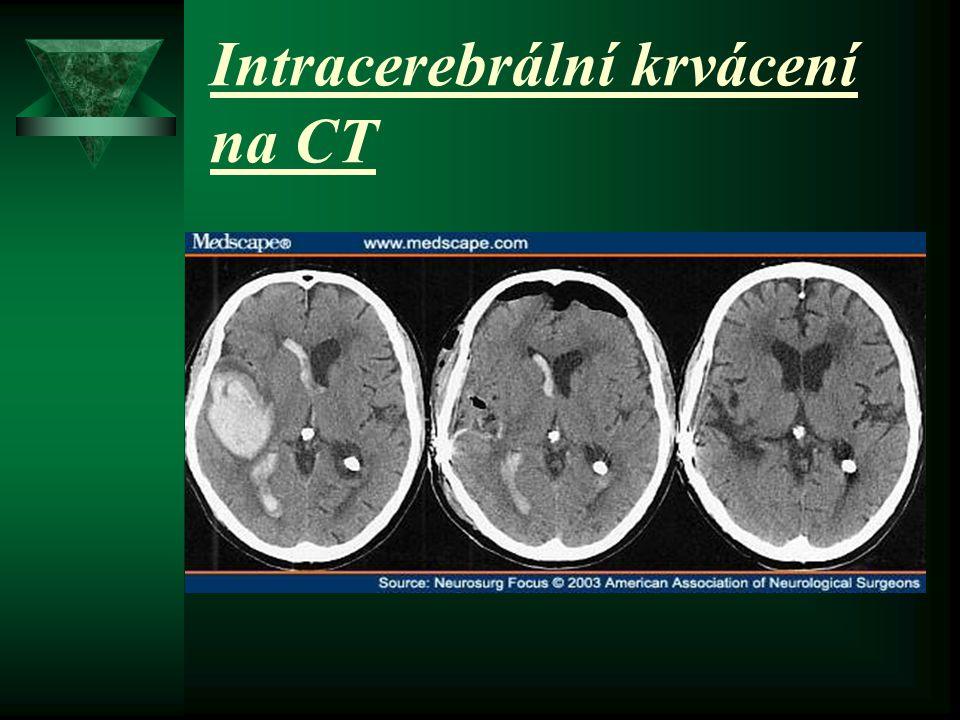 Intracerebrální krvácení na CT