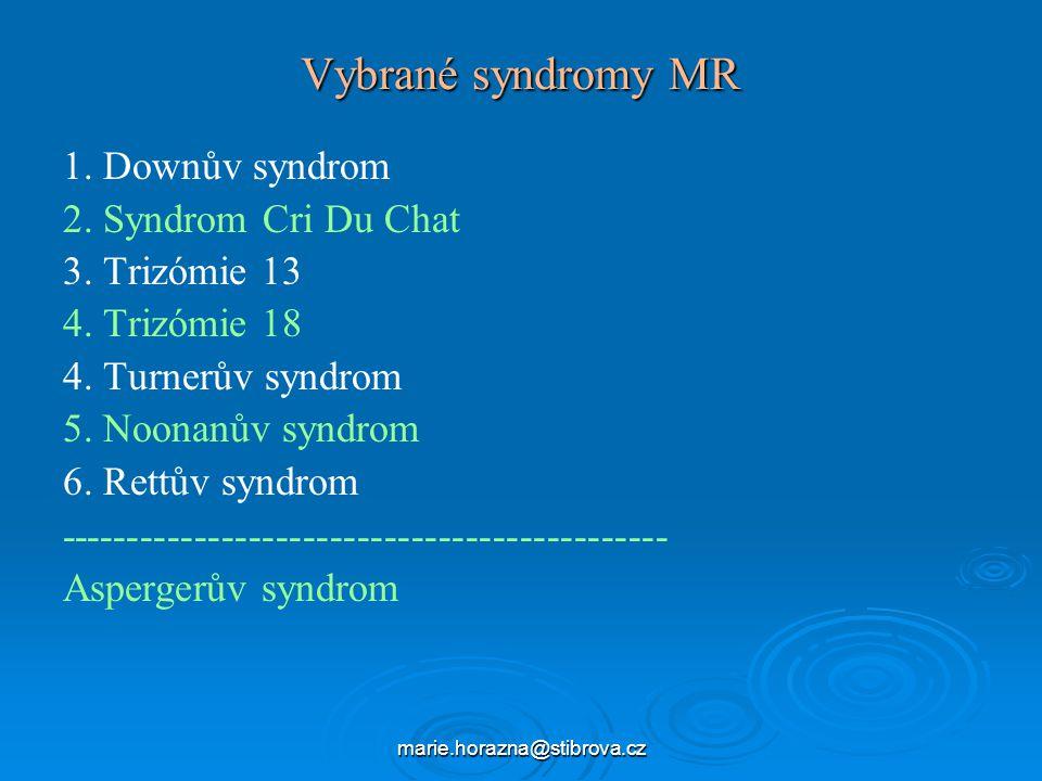Vybrané syndromy MR 1. Downův syndrom 2. Syndrom Cri Du Chat