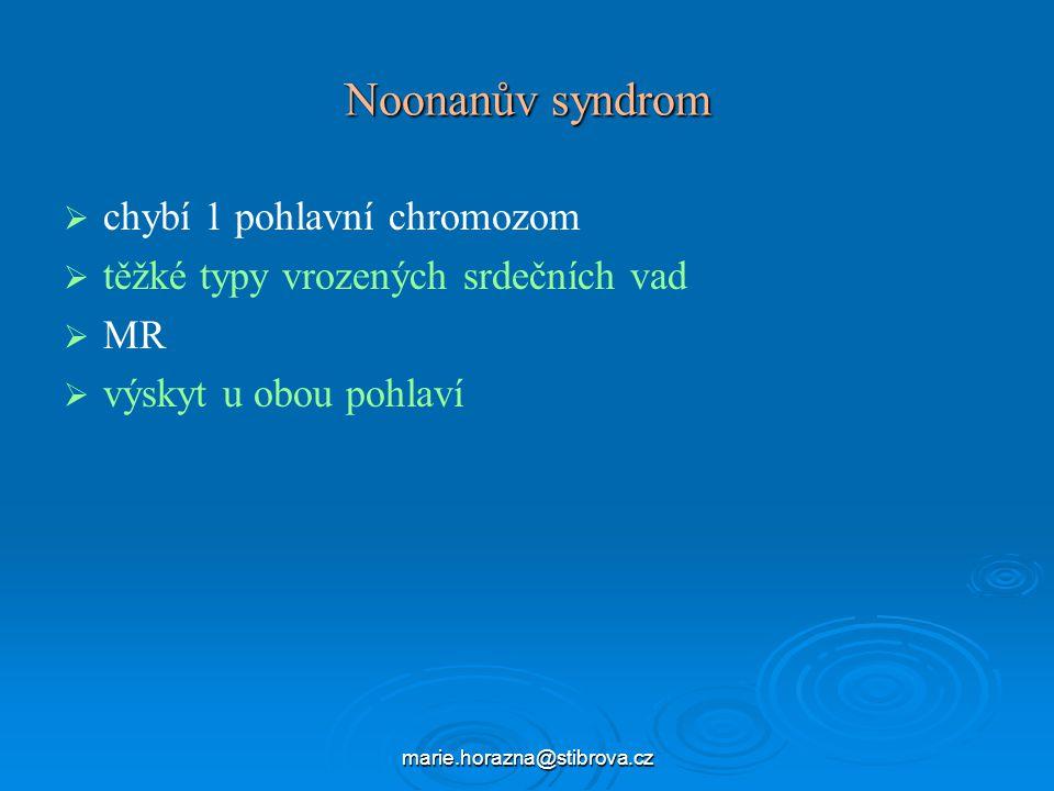 Noonanův syndrom chybí 1 pohlavní chromozom