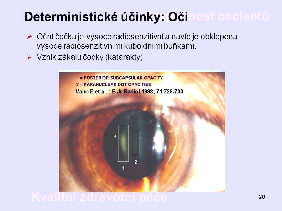 Deterministické účinky: Oči