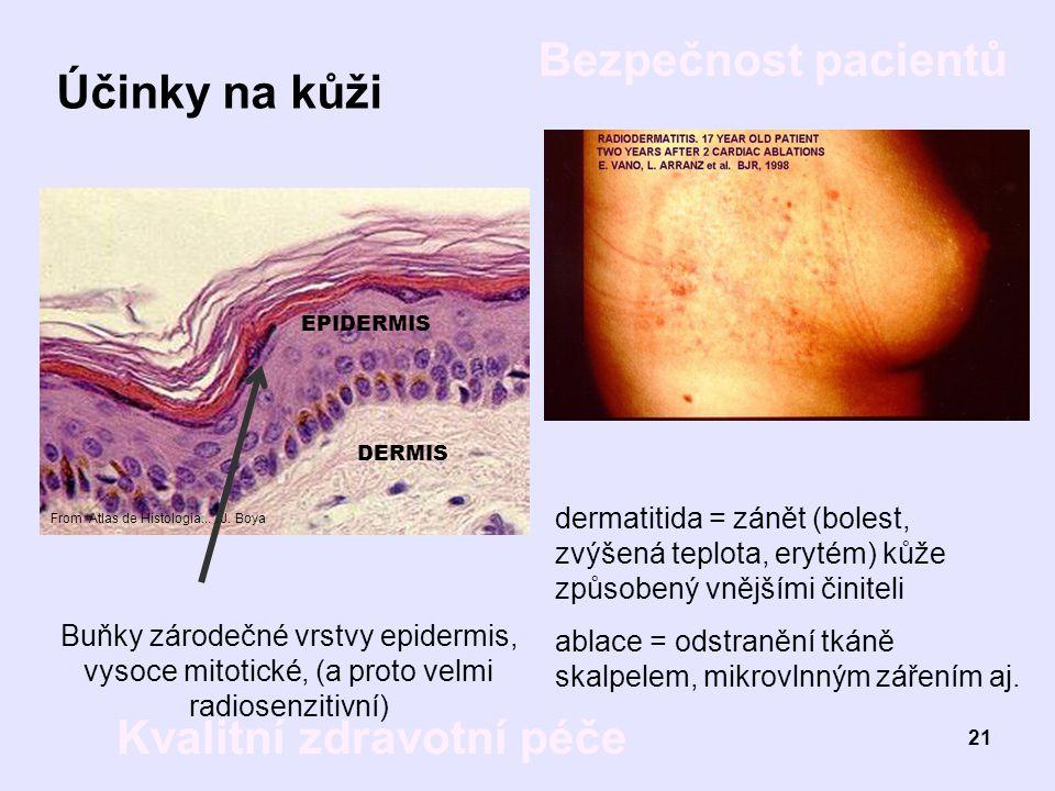 Účinky na kůži DERMIS. EPIDERMIS. Buňky zárodečné vrstvy epidermis, vysoce mitotické, (a proto velmi radiosenzitivní)
