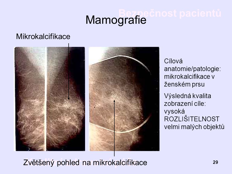 Mamografie Mikrokalcifikace Zvětšený pohled na mikrokalcifikace