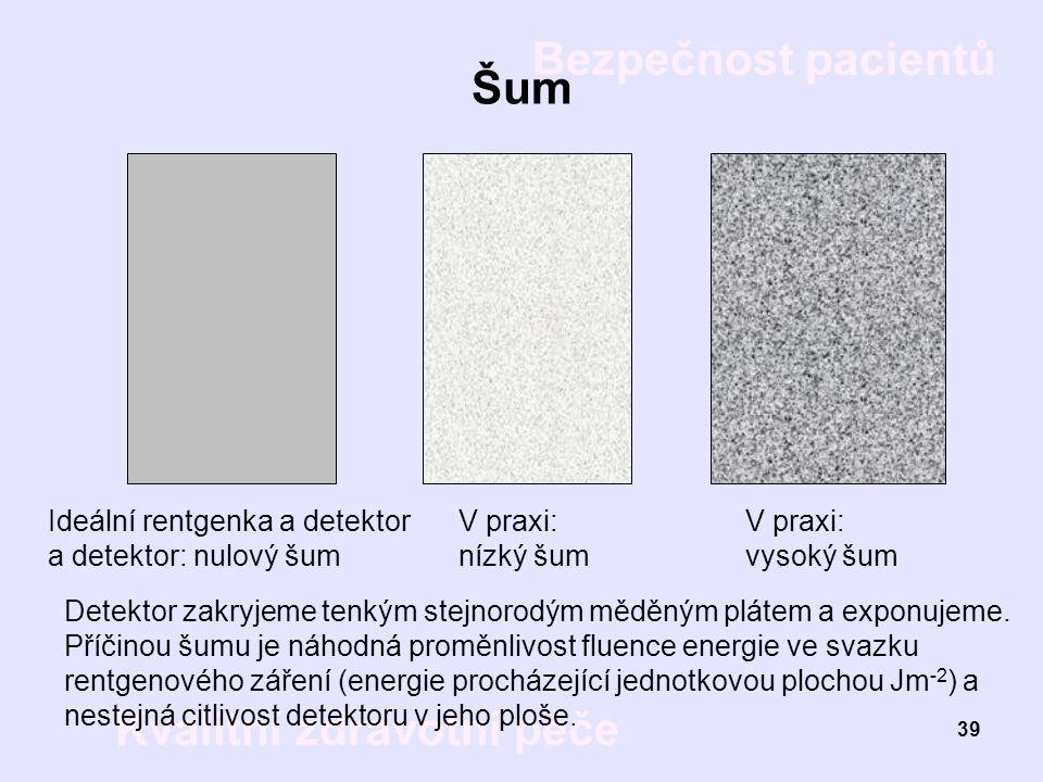 Šum Ideální rentgenka a detektor a detektor: nulový šum