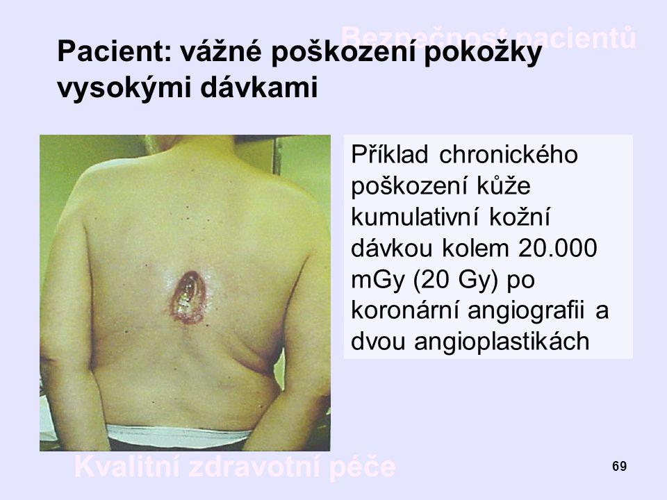 Pacient: vážné poškození pokožky vysokými dávkami