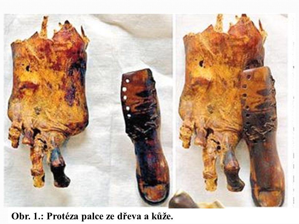 Obr. 1.: Protéza palce ze dřeva a kůže.