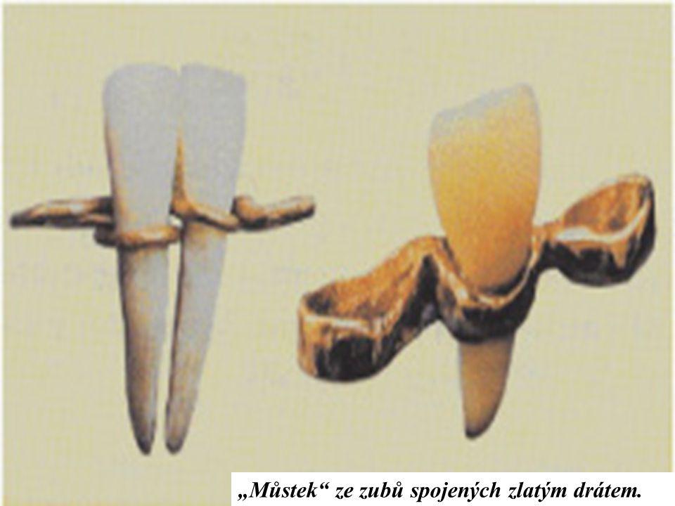 """""""Můstek ze zubů spojených zlatým drátem."""