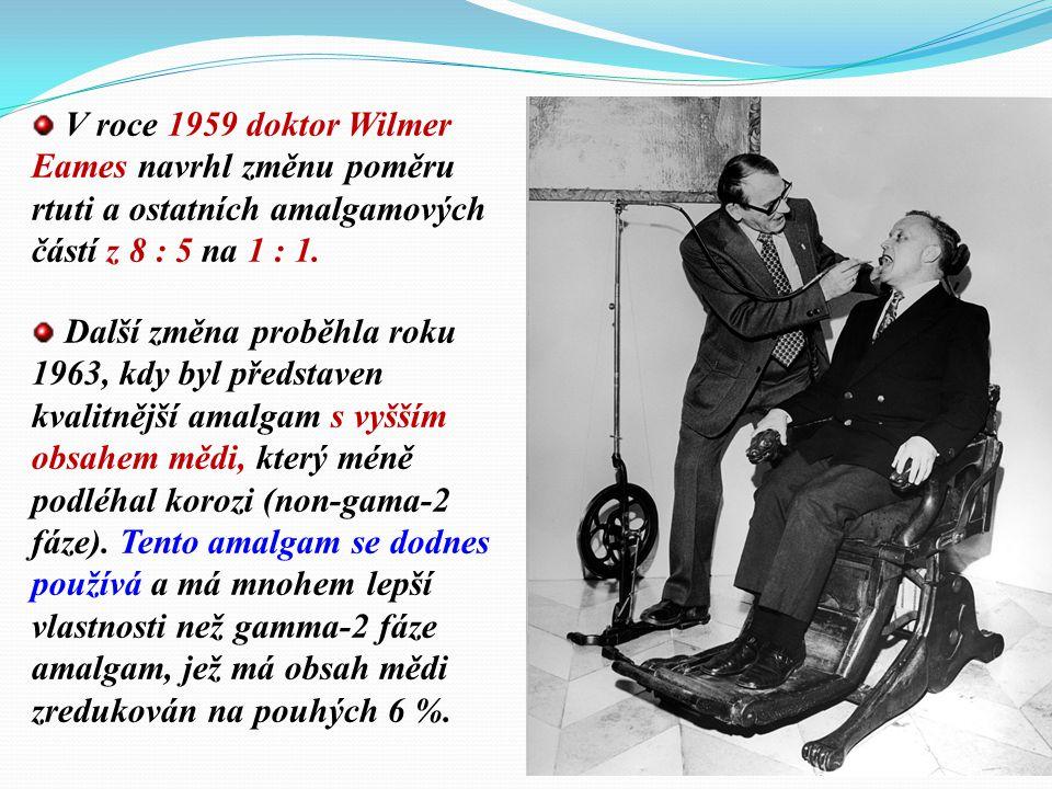 V roce 1959 doktor Wilmer Eames navrhl změnu poměru rtuti a ostatních amalgamových částí z 8 : 5 na 1 : 1.