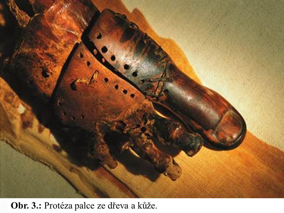 Obr. 3.: Protéza palce ze dřeva a kůže.
