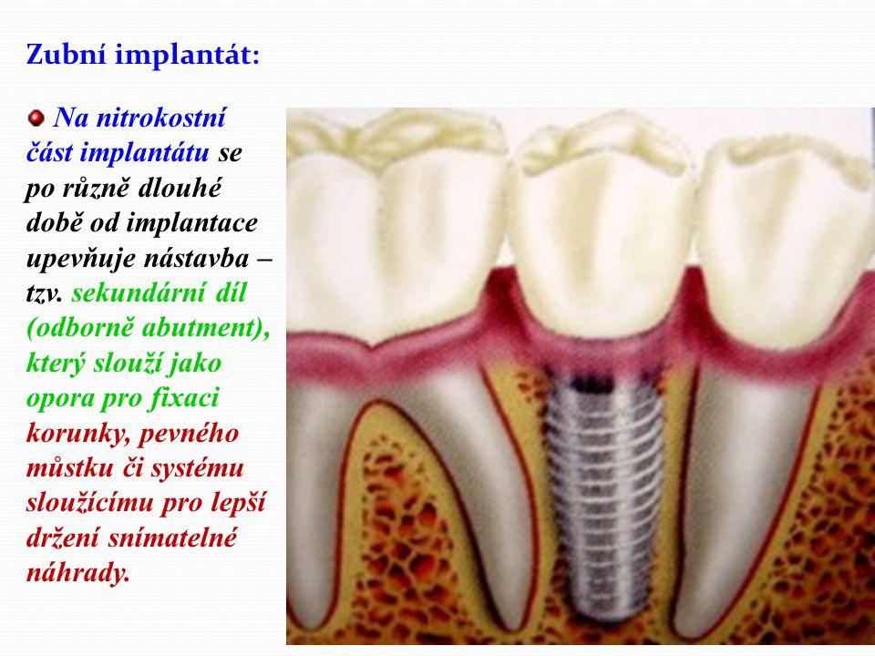 Zubní implantát: