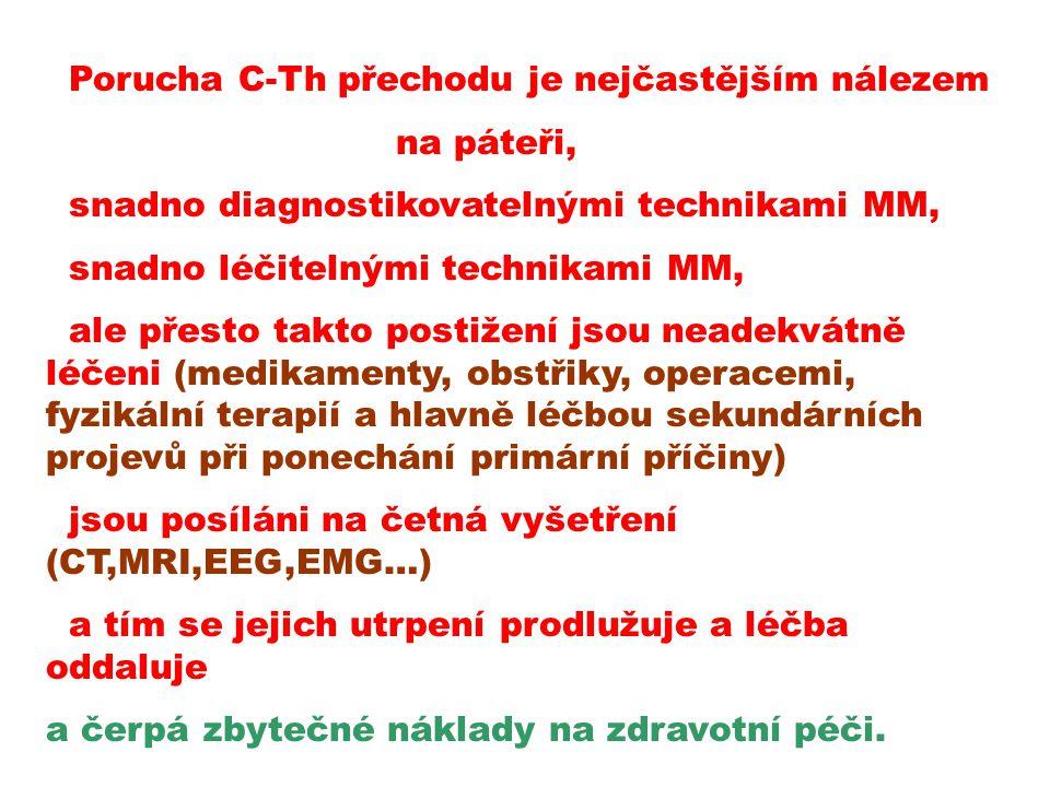 Porucha C-Th přechodu je nejčastějším nálezem