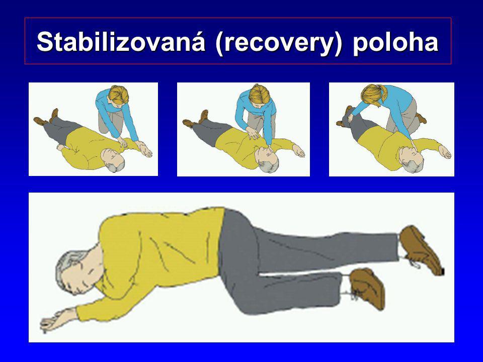 Stabilizovaná (recovery) poloha