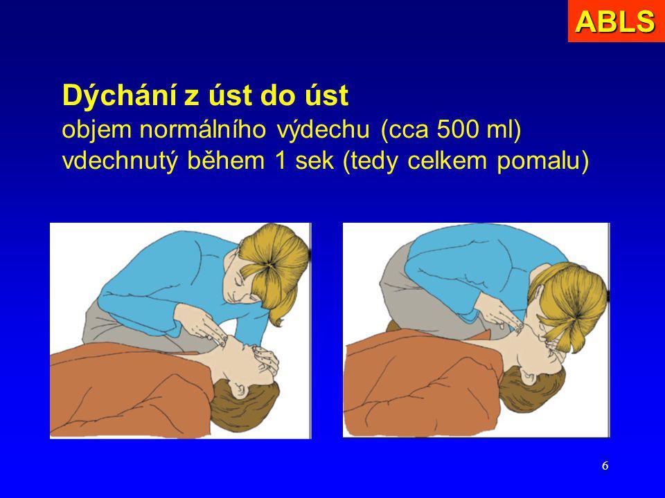ABLS Dýchání z úst do úst objem normálního výdechu (cca 500 ml) vdechnutý během 1 sek (tedy celkem pomalu)