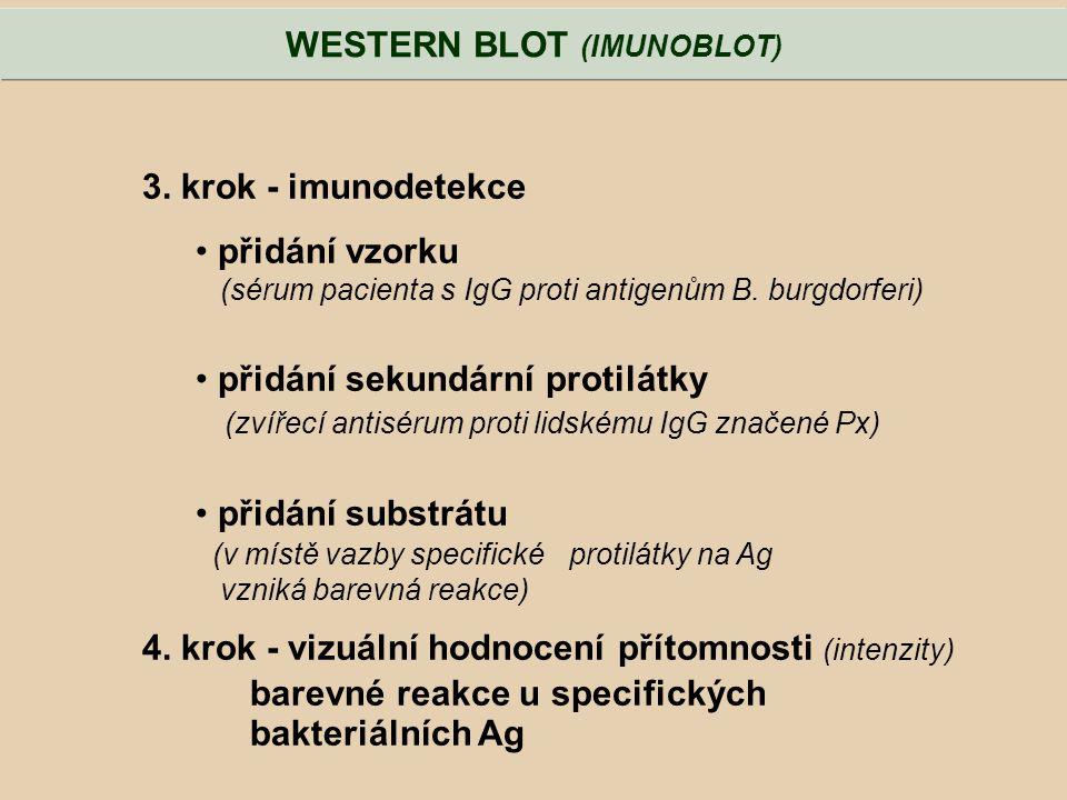 WESTERN BLOT (IMUNOBLOT)