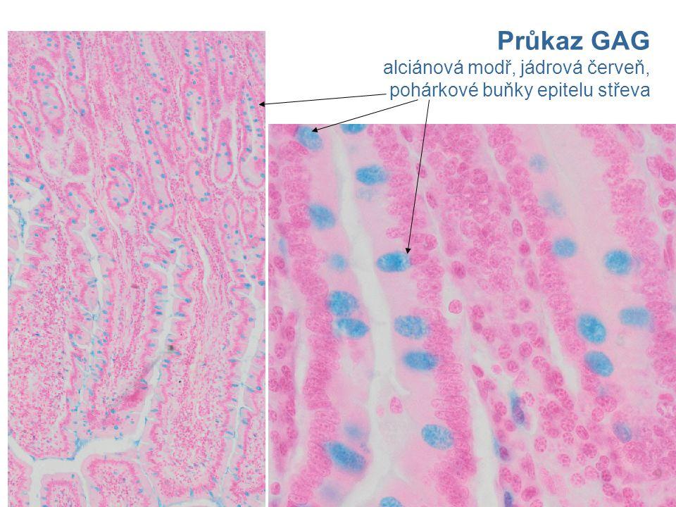 Průkaz GAG alciánová modř, jádrová červeň, pohárkové buňky epitelu střeva