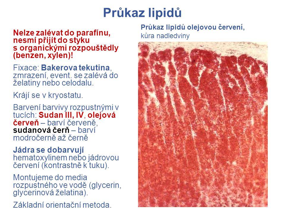 Průkaz lipidů Průkaz lipidů olejovou červení, kůra nadledviny.