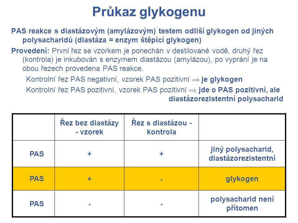 Průkaz glykogenu PAS reakce s diastázovým (amylázovým) testem odliší glykogen od jiných polysacharidů (diastáza = enzym štěpící glykogen)