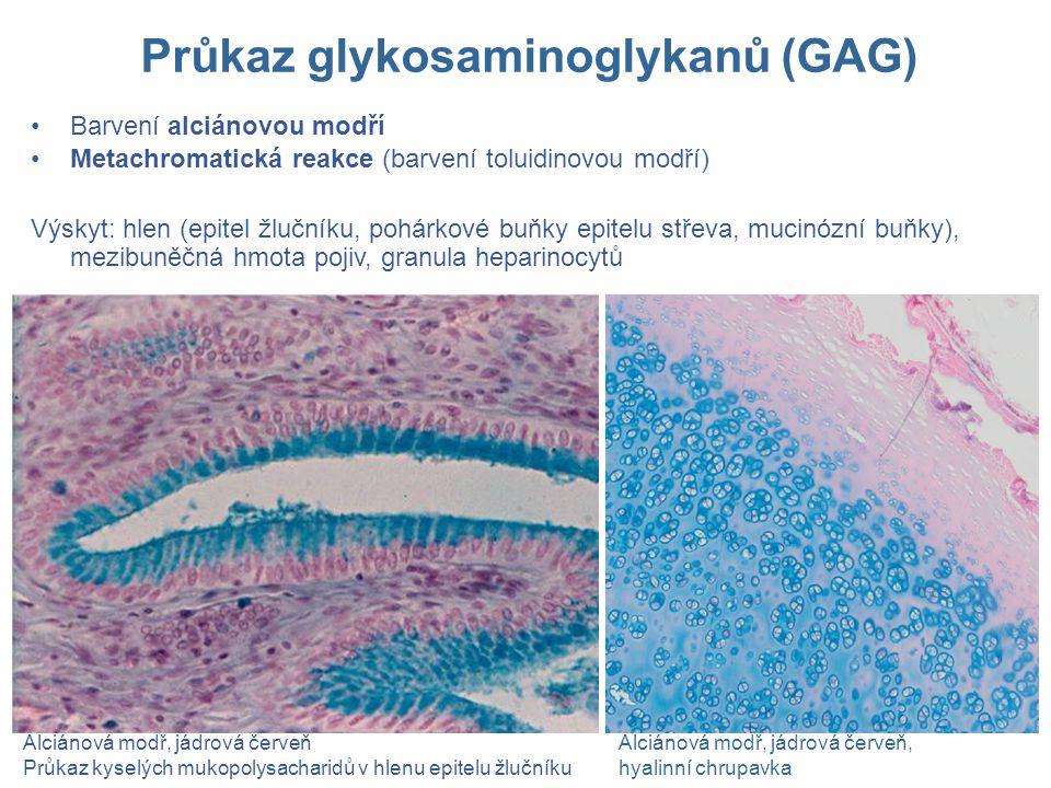 Průkaz glykosaminoglykanů (GAG)
