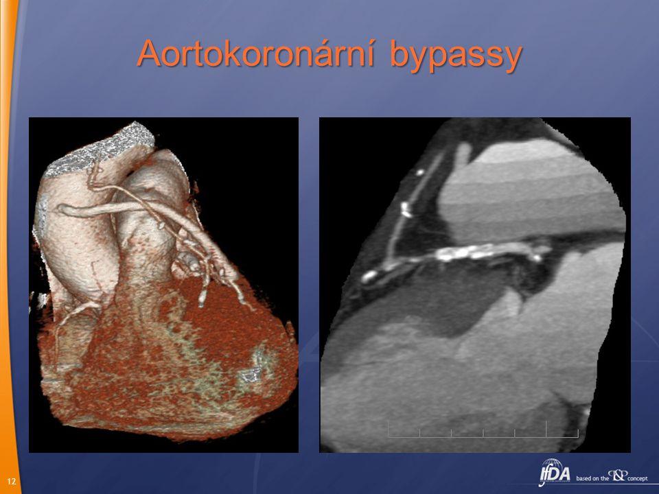 Aortokoronární bypassy
