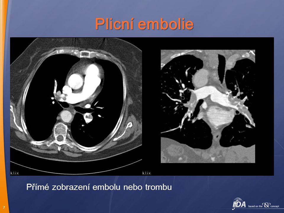 Plicní embolie Přímé zobrazení embolu nebo trombu