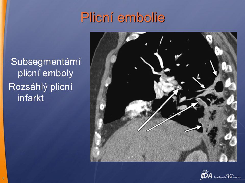 Plicní embolie Subsegmentární plicní emboly Rozsáhlý plicní infarkt